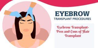 eyebrow transplant- Eyebrow Transplant- Pros and Cons of Hair Transplant