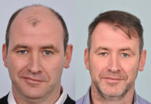 Are the results of hair transplant permanent?