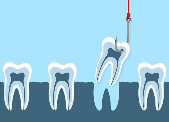 tooth extractions aftercare